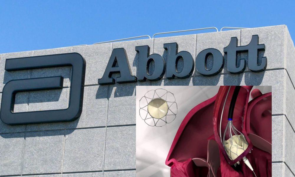 Abbott получила в России регистрационное удостоверение на систему Portico