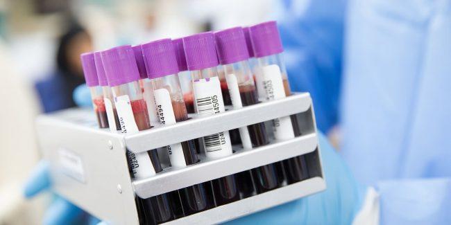 Разрабатывается законопроект по развитию производства компонентов крови в РФ