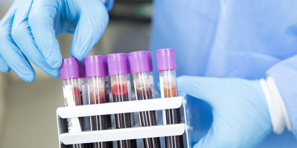 Разработан индикатор риска в сфере безопасности донорской крови и ее компонентов