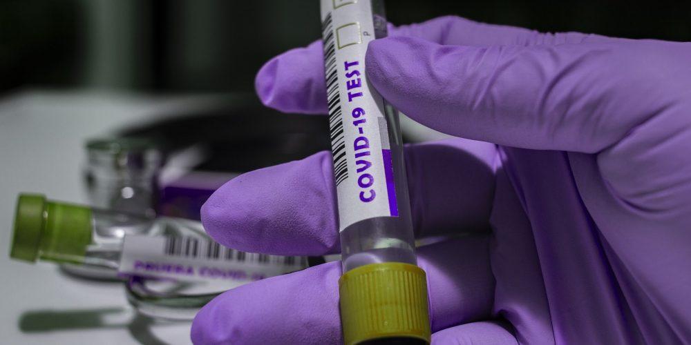 Зарегистрирована тест-система для выявления «британского» штамма коронавируса