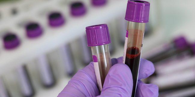 В ЕАЭС разработаны единые требования к инструкции препаратов из плазмы крови