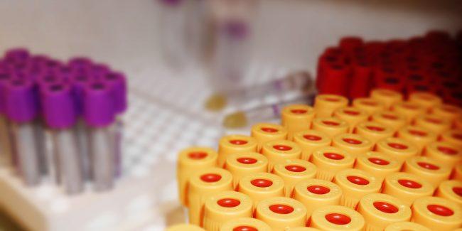 Определён размер пошлин в сфере обращения незарегистрированных МИ для диагностики in vitro
