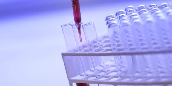 «ХимРар» разрабатывает препарат от COVID-19 на основе апротинина
