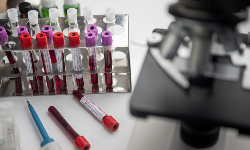 Выдано разрешение на проведение исследования вакцины «ЭпиВакКорона-Н»