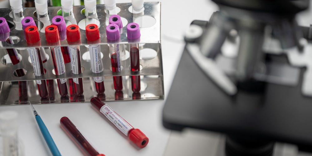 Lilly, Vir Biotechnology и GSK оценят комбинированную терапию COVID-19